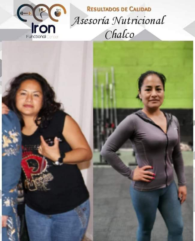 nutrición clinica chalco