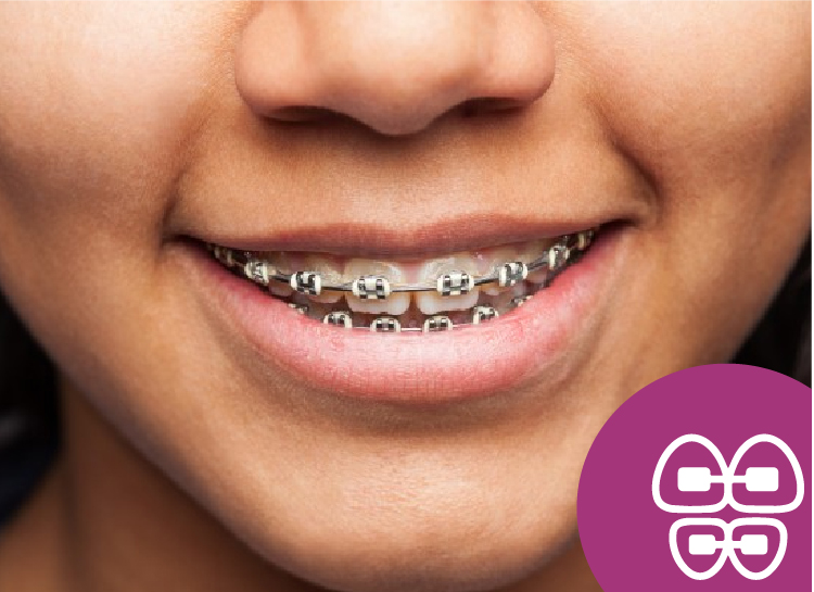 Ortodoncista en Tlalnepantla